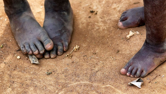 Childrens feet with no shoes on